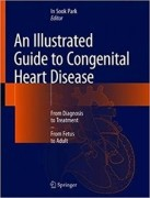 An Illustrated Guide to Congenital Heart Disease