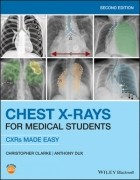 Chest X-Rays For Medical Students - Cxrs Made Easy 2Nd Edition