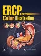 ERCP Color Illustration 2nd