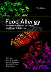 Food Allergy: Adverse Reaction to Foods and Food Additives, 5/e