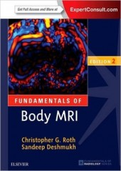 Fundamentals of Body MRI, 2/e
