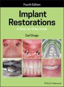 Implant Restorations - A Step-By-Step Guide