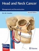 Head and Neck Cancer 2/e