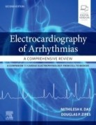 Electrocardiography of Arrhythmias: A Comprehensive Review, 2nd Edition